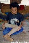Yuon Yath the youngest victim in his village lost his left leg whilst preparing a paddy field